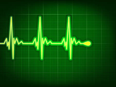 doctor examine: Heart cardiogram with shadow on it deep green.