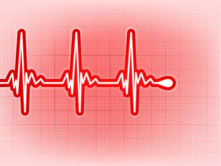 infarctus: Cardiogramme avec l'ombre sur elle d'un rouge profond.