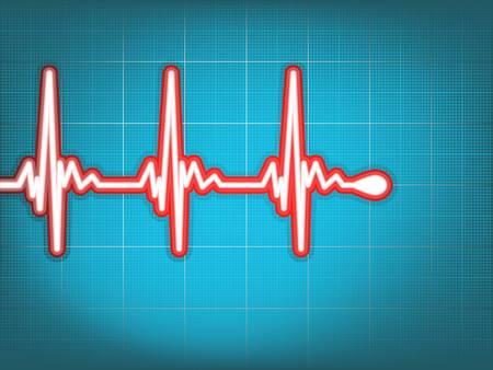 Heart cardiogram with shadow on light blue Stock Vector - 12489425