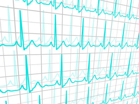 ecg monitoring: Fully editable and is located on a separate group heart cardiogram  Illustration
