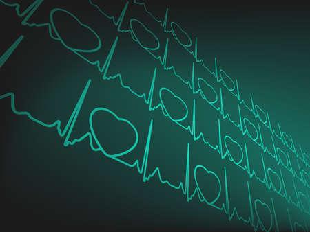 Cardiogram Stock Vector - 13396113