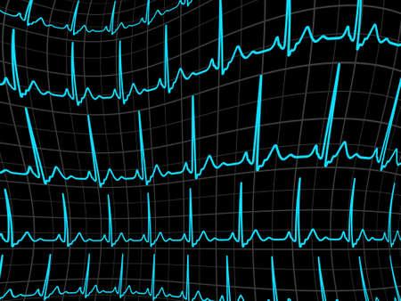 cardioid: ECG tracing monitor EPS 8 archivo vectorial incluido