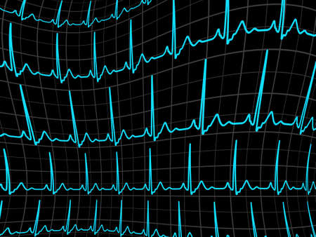 cardioid: ECG tracing monitor  EPS 8 vector file included