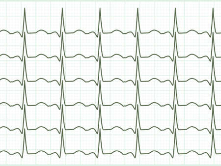 ekg: Fully editable and is located on a separate group heart cardiogram  EPS 8 vector file included Illustration
