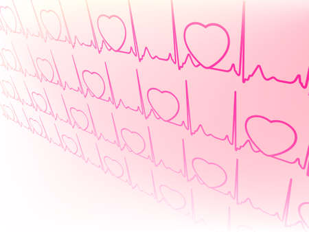 Abstract electrocardiogram, waveform from EKG test  EPS 8 vector file included