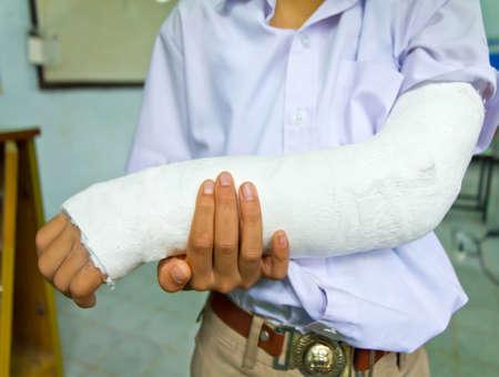 Le bras de gar�on �tudiant tha�landais est cass�