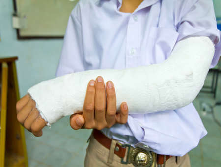 broken arm: Thai boy students arm is broken Stock Photo