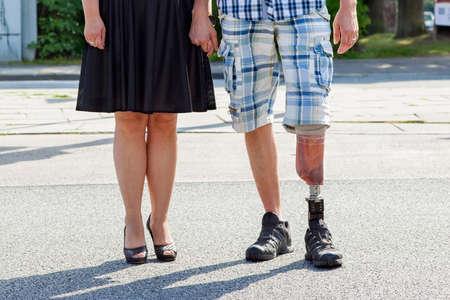 piernas hombre: Hombre amputado llevando una pierna ortop�dica de pie con una mujer en la calle, vista de cerca de sus piernas y la pr�tesis
