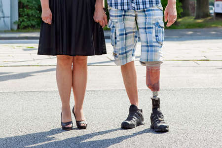 Man geamputeerde dragen van een beenprothese staande met een vrouw in een straat, close-up van hun benen en de prothese Stockfoto