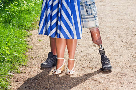 amputation: Close up view of the legs of a disabled man wearing a prosthetic leg following a limb amputation standing with a stylish woman in a dress on a gravel path Stock Photo