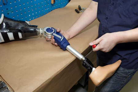 Worker in orthopaedic workshop adjusts leg prosthesis