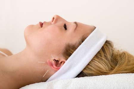 acupuntura china: Hermosa mujer con la acupuntura y bella mujer se relaja en una cama que tiene tratamiento de la acupuntura con tres finas agujas en y alrededor de su l�bulo de la oreja