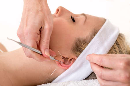 Alternative practitioner treating woman with acupuncture  Homeopath treating woman with ear acupuncture techniques, also known as auriculotherapy by using needles and pressure points photo