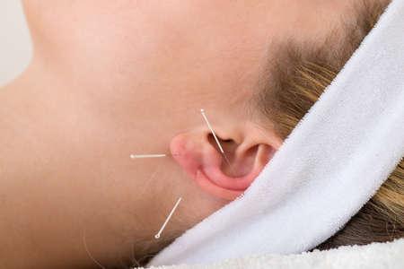 acupuntura china: Primer plano de agujas de acupuntura en la oreja Primer plano de tres agujas de acupuntura en la oreja de una mujer