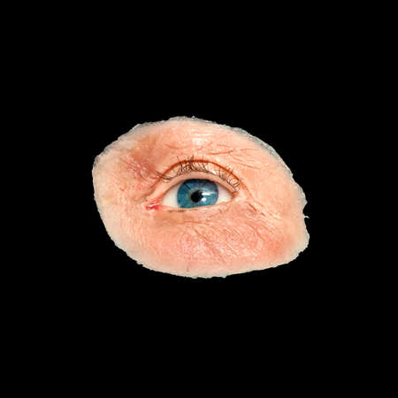 eye socket: Artificial Eye and Skin For Destroyed Eye Sockets Isolated on Black Stock Photo