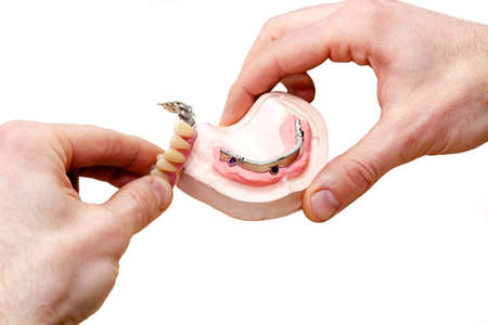 false teeth: Facial Dental Prosthetic for Patients with Intraoral Problems such as Missing Teeth on White Background