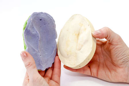 plaster mould: The negative blue form of the head part around amputated ear filled with plaster for getting positive form.
