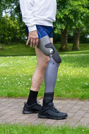 Close up on gray plastic prosthetic leg of single man in blue shorts walking on brick paved path in green grass