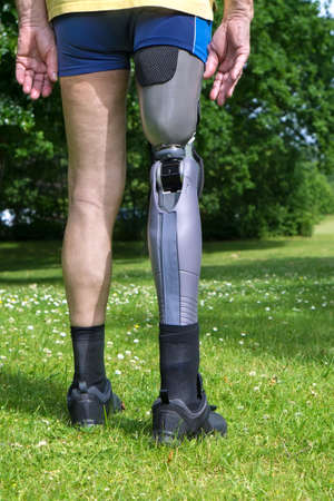amputation: Close up rear view on gray plastic prosthetic leg of single man in yellow shirt and blue shorts standing in green grass with white clover flowers