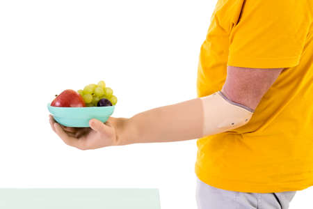 Profile View of Man with Prosthetic Arm Wearing Bright Yellow T-Shirt Holding Small Bowl of Fresh Fruit in Studio with White Background and Copy Space Stock Photo