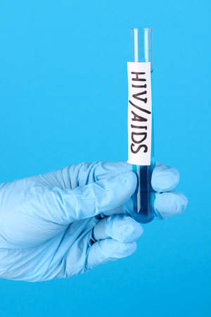 Test tube labeled HivAids in hand on blue background photo