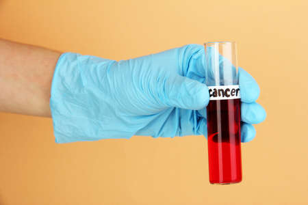 Test tube labeled Cancer in hand on beige background photo