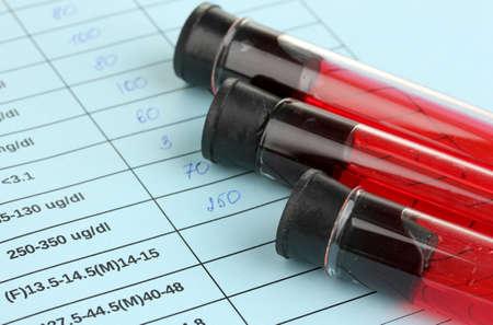 globulo rojo: La sangre en tubos de ensayo y los resultados de cerca Foto de archivo