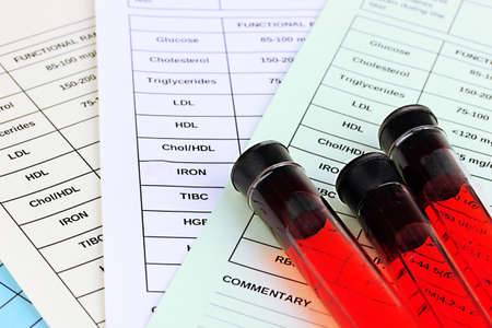 blood supply: Blood in test tubes and results close up