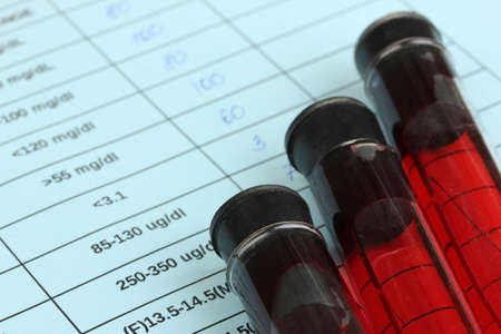 recipient: Blood in test tubes and results close up