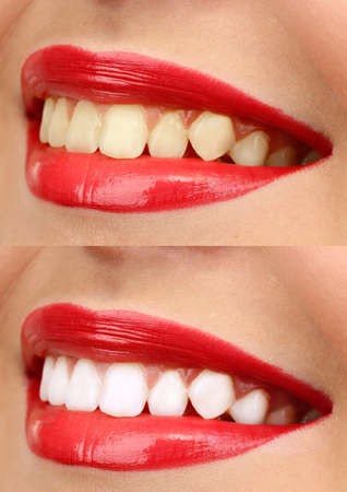 yellow teeth: Women smile with teeth: whitening - bleaching treatment , before and after