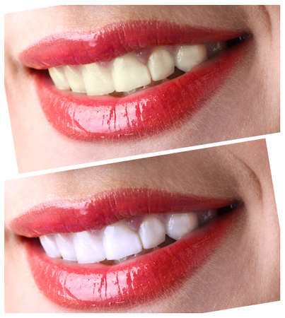 before after: Women smile with teeth: whitening - bleaching treatment , before and after