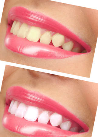 Women smile with teeth: whitening - bleaching treatment , before and after photo
