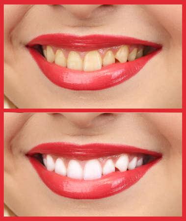 Frauen lächeln mit Zähnen: Bleaching - Bleichen Behandlung vor und nach