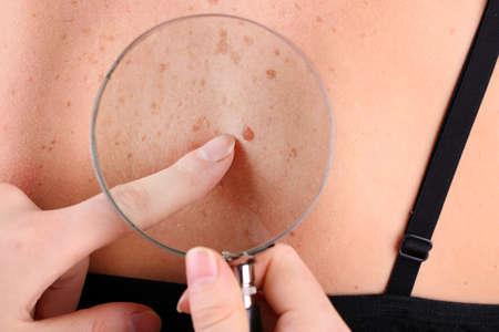 Dermatologo esamina una voglia di paziente, close up