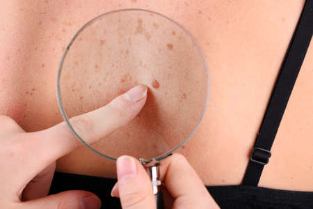 Dermatologist examines a birthmark of patient, close up Standard-Bild
