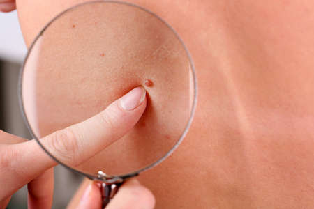 melanoma: Dermatologist examines a birthmark of patient, close up Stock Photo