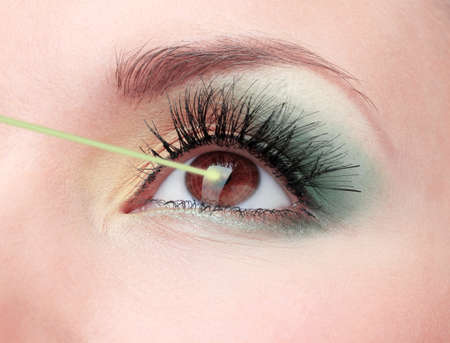 opthalmology: Woman eye with laser correction Stock Photo