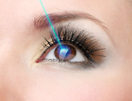 Laser vision correction. Womans  eye.