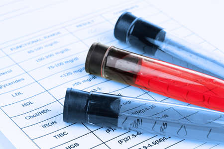 Blood in test tubes and results close up photo