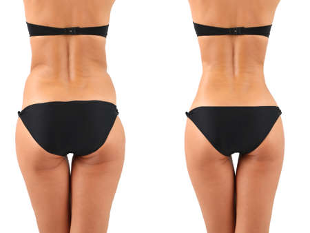 body slim: La chirurgie plastique. Liposuccion. Concept de corps mince