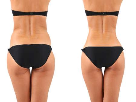 Plastic surgery. Liposuction. Slim body concept Foto de archivo