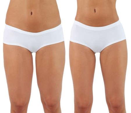 Plastic surgery. Liposuction. Slim body concept 스톡 콘텐츠