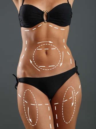 Plastic surgery. Liposuction. Slim body concept photo