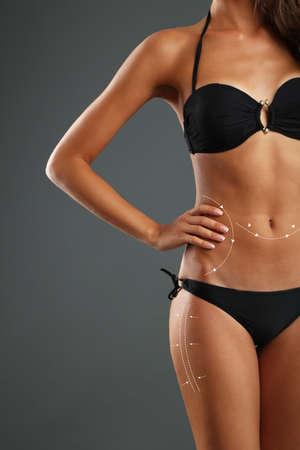body slim: Chirurgie plastique liposuccion sur le corps Slim