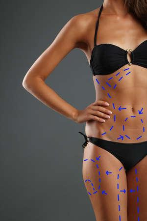 Plastic surgery Liposuction on Slim body photo