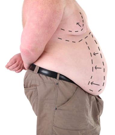 elasticidad: Hombre gordo marcado con líneas para la cirugía estética abdominal aislado en blanco