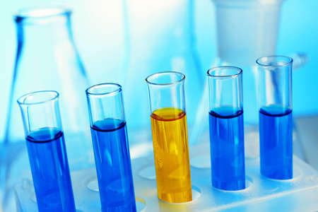 Test-tubes filled with color fluid close-up photo