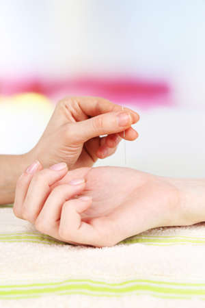 acupressure hands: Acupuncture on hand, close up. Isolated on white Stock Photo