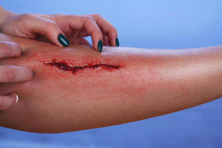 cut and blood: Injured leg with blood on blue background