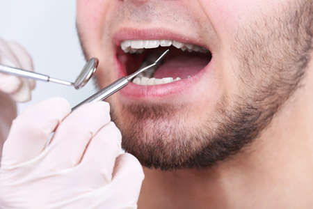 to examine: Examine of young man by dentist on white blurred background